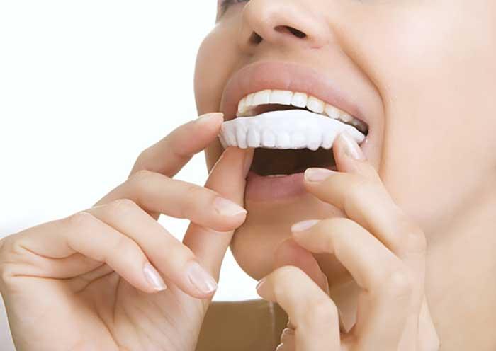 Teeth Whitening in McAllen, TX